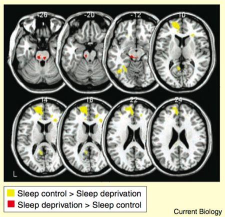 1474786636-7757-sleep