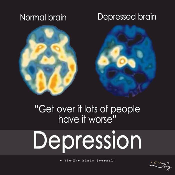 Normal Brain V/s Depressed Brain