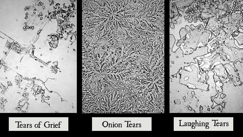 Different Types of Human Tears As Seen Under A Microscope