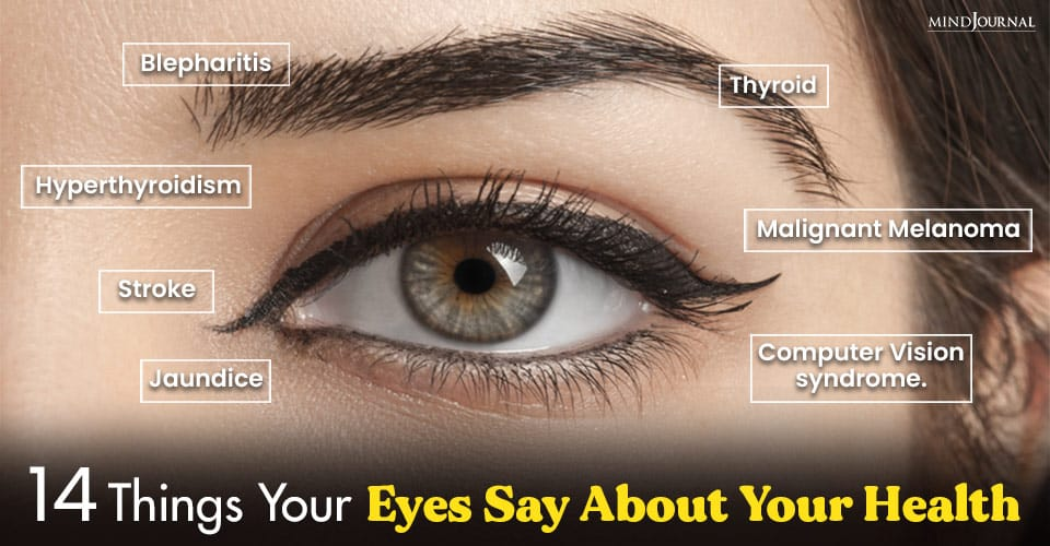 Things Eyes Say About Health