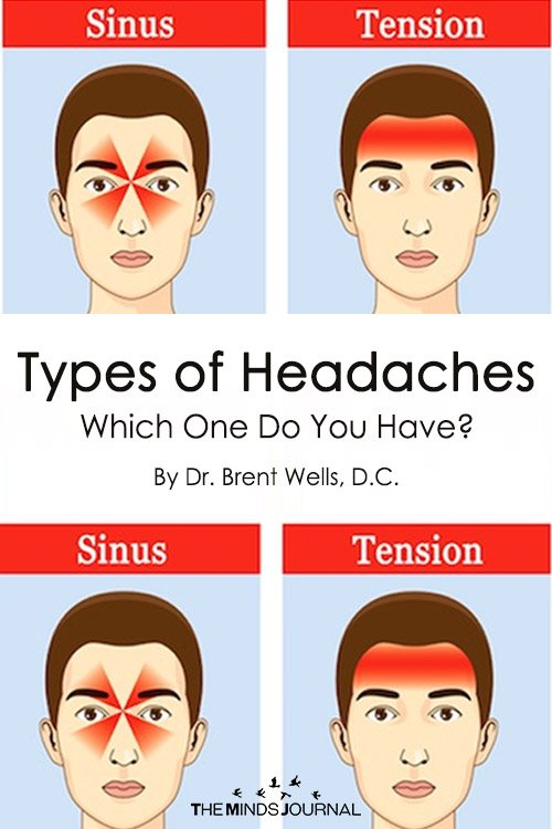 Types of Headaches Which One Do You Have