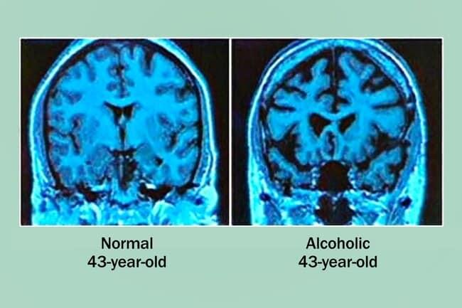 Impact of alcohol on brain