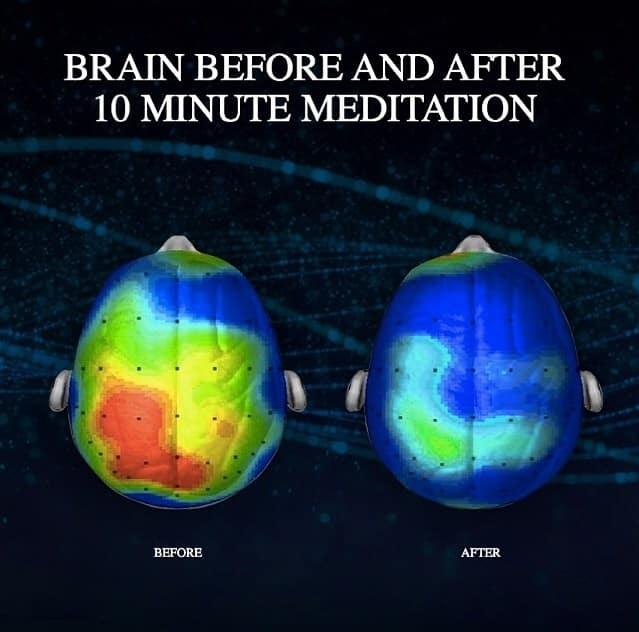 brain after meditation