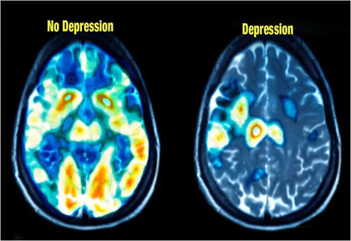 pet scans of healthy and depressed brain.