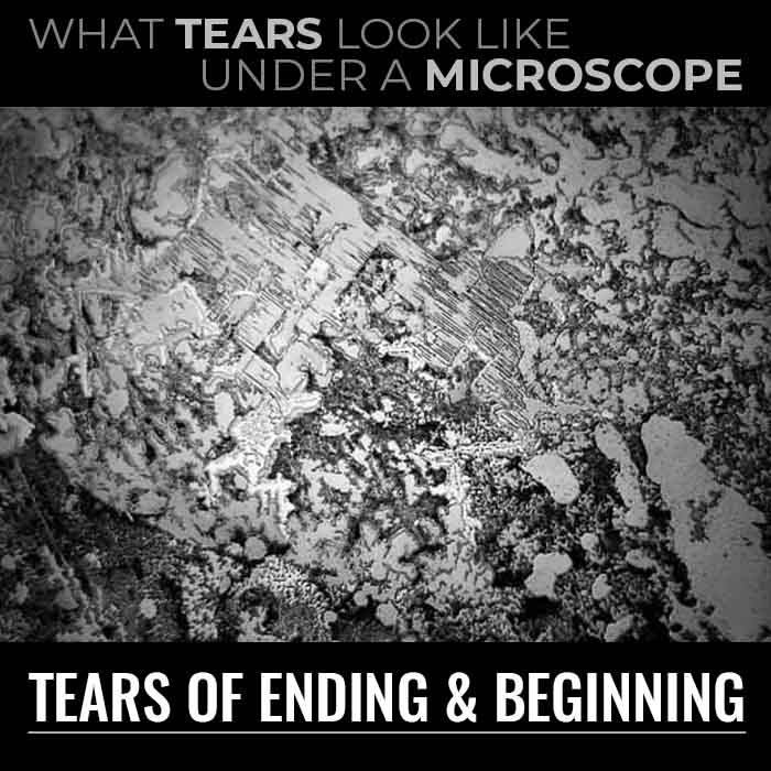What Tears Look Like Under a Microscope