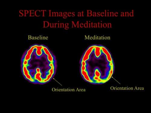 brain changes before and after meditation