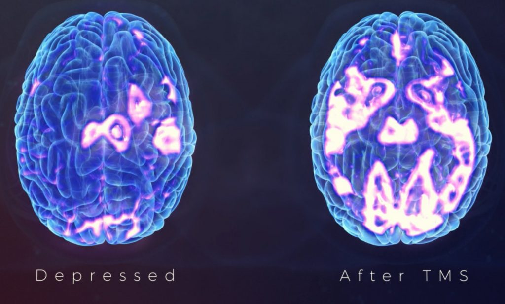 Effect of TMS